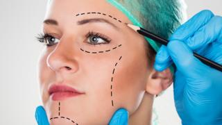 A close up of a woman's face as a surgeon draws perforation lines on her ahead of a facelift.