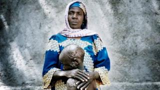 Falta Oumara, 40, with her badly burnt son Modou, 7 at an informal IDP camp for women and children in Mémé