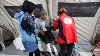أحد الضحايا يتلقى العلاج في زلزال إيران
