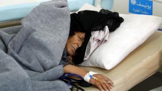 "A cholera-infected Yemeni woman receives treatment at a hospital amid cholera outbreak in Sana""a, Yemen, 28 May 2017."