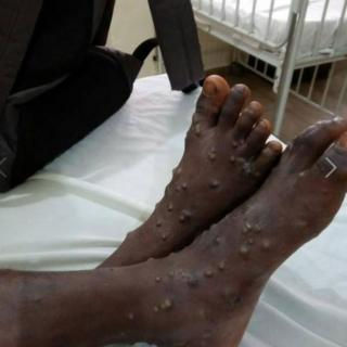 Rash on top person leg wey be like monkeypox