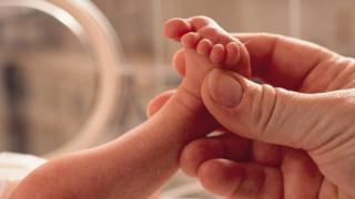 Neonatal care involves the care of babies born early and those needing treatment at the start of life