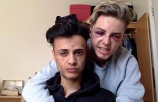 詹姆斯和戴恩被攻擊後