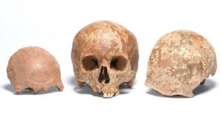 Roman skulls uncovered at Liverpool Street