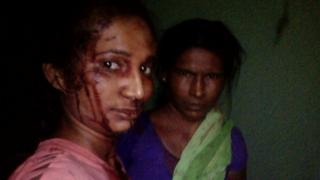 Rupali Meshram (left) took a selfie with her mother soon after the attack