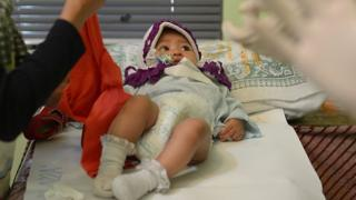 An Indonesian baby girl (C) lying on a bed as doctors prepare to perform her circumcision in Bandung. Indonesia,