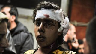In this photo released by the Syrian official news agency SANA, an injured victim of the triple blast in Sayyida Zeinab, a predominantly Shiite Muslim suburb of the Syrian capital Damascus arrives to a hospital to receives treatment, Syria, Sunday, Feb. 21, 2016.