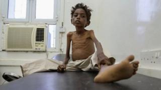 5岁的也门男童Mohannad Ali去年在也门一家医院接受帮助。他两岁的表弟已经饿死。