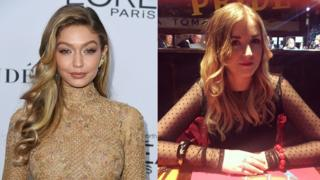 Gigi Hadid and Rachel who both suffer from Hashimoto's disease