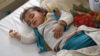 Heba, a one-year-old girl, received treatment for cholera at a treatment centre in Sanaa (20 June 2017)