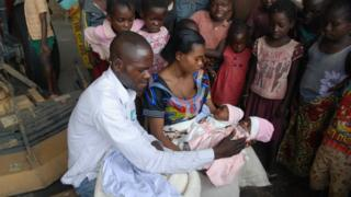 After surgery, the twins were flown back to Vanga