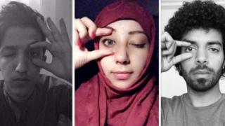 People shared photographs of themselves closing an eye in solidary with a young injured Yemni girl