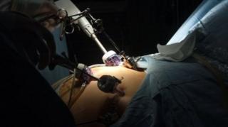 ราชวิทยาลัยวิสัญญีแพทย์แห่งสหราชอาณาจักรระบุว่า กรณีคนไข้รู้สึกตัวตื่นขึ้นขณะผ่าตัดนี้ พบได้ราว 1 ใน 19,000 ราย