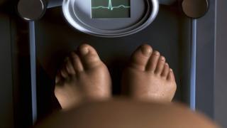 Obesity illustration