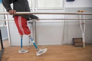 Ramesh uses the walkway within the National Disability Fund clinic in Kathmandu to train on his prosthetics