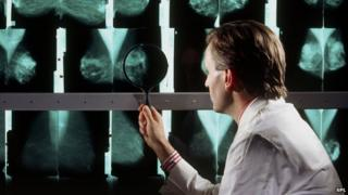 Doctor analysing mamograms