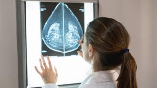 A doctor looking at a mammogram