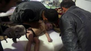 一名儿童在杜马镇医院接受治疗