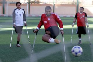 Egyptian Handicapped Mohamed Azeema (C) in action during the first disabled soccer match in Cairo, Egypt, 16 December 2017