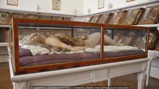 Josephinum, Collections and History of Medicine, MedUni Vienna/Photo Joanna Ebenstein