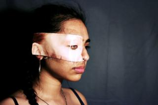 A girl has white skin taped over her eye