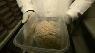 นักวิทยาศาสตร์เรียกร้องให้คนบริจาคสมองเพิ่มขึ้น