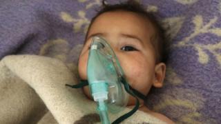 طفل مصاب في الهجوم