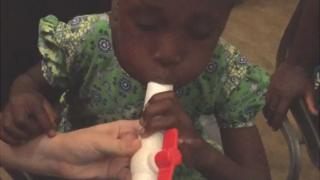 malaria breath test