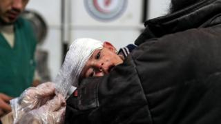 An injured nine-month-old girl receives medical attention at a field hospital in rebel-held Douma, Syria (26 November 2017)