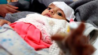 طفل يمني مصاب بالكوليرا