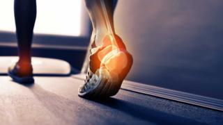Ilustração sobre foto de tornozelo