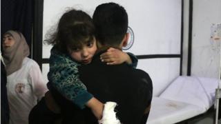 Un pequeña herida en Douma, Siria