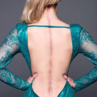 La espalda de Victoria con una cicatriz