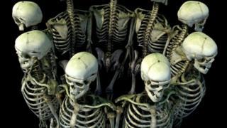 Image of Burke's skeleton in 3D