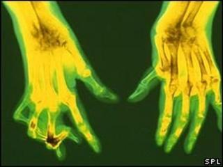 An X-ray of hands affected by rheumatoid arthritis
