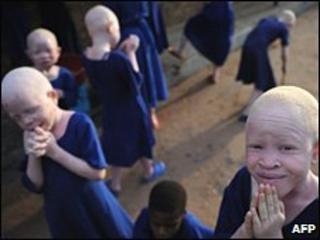 Albino children in Tanzania (file photo)