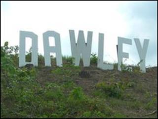 Dawley sign