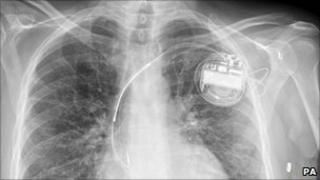 X-ray of Mr Nixon's chest