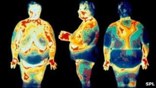 Thermogram of obese people