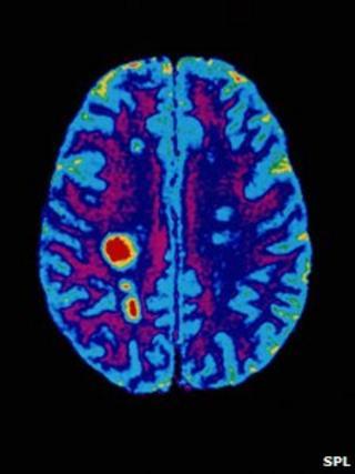 Brain scan of MS patient