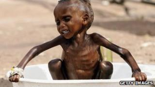 A malnourished child in Kenya