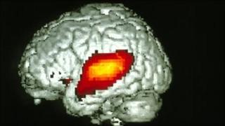 Auditory cortex
