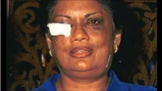 Chandrika Kumaratunga after the attack on her rally in Colombo in 1999