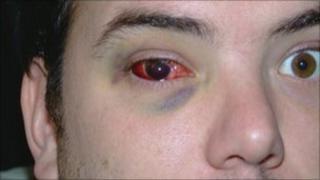 Clarence Harding's eye injury