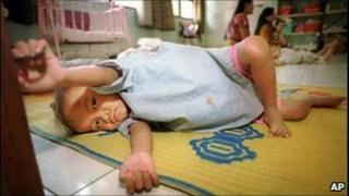 Abandoned HIV-infected baby, Phnom Penh Nutrition Centre, 1999