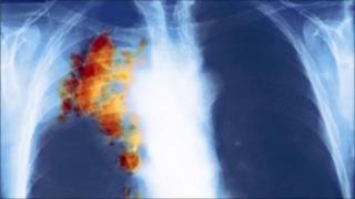 Lung cancer x-ray