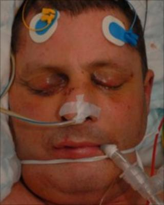 Dominic Conlan in hospital