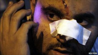 Anti-government demonstrator, wounded during clashes with pro-government protesters, makes a call from his mobile