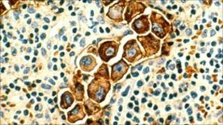 Lymph node showing cancer cells