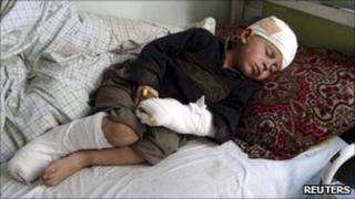 """A boy, injured during a NATO air strike, lies on a hospital bed in Afghanistan""""s eastern Kunar province"""